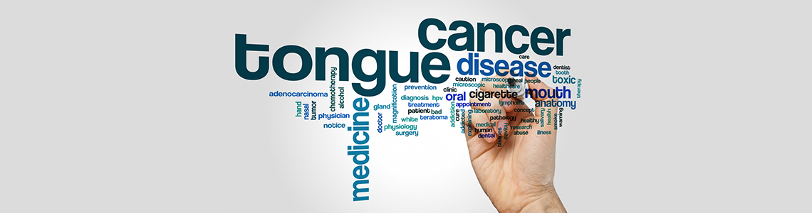 Tongue Cancer Treatment, surgical oncology gurgaon, oral cancer treatment, mouth cancer treatment, oral cancer treatment gurgaon, mouth cancer treatment gurgaon
