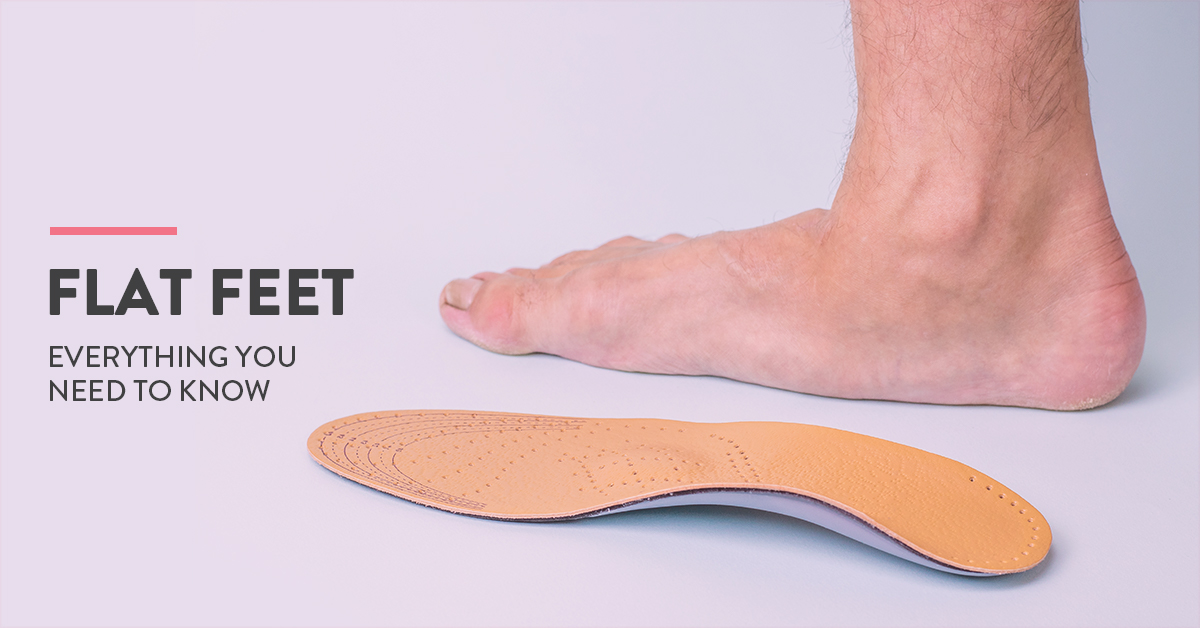 Flat feet symptoms, causes and cure