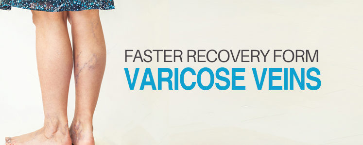 varicose veins treatment, varicose veins, swollen veins