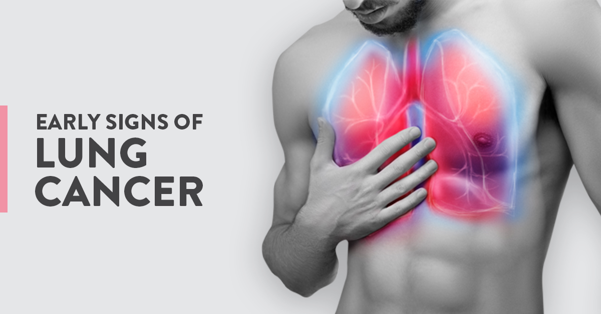 early signs of lung cancer, warning signs of Lung Cancer