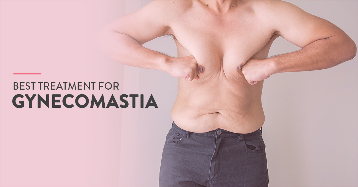 get rid of gynecomastia, gynecomastia non surgical treatment, gynecomastia procedure, gynecomastia cure, how to get rid of gynecomastia, male breast reduction without surgery, gynecomastia reduction, male breast treatment without surgery, gynecomastia without surgery, male chest reduction surgery, best treatment for gynecomastia