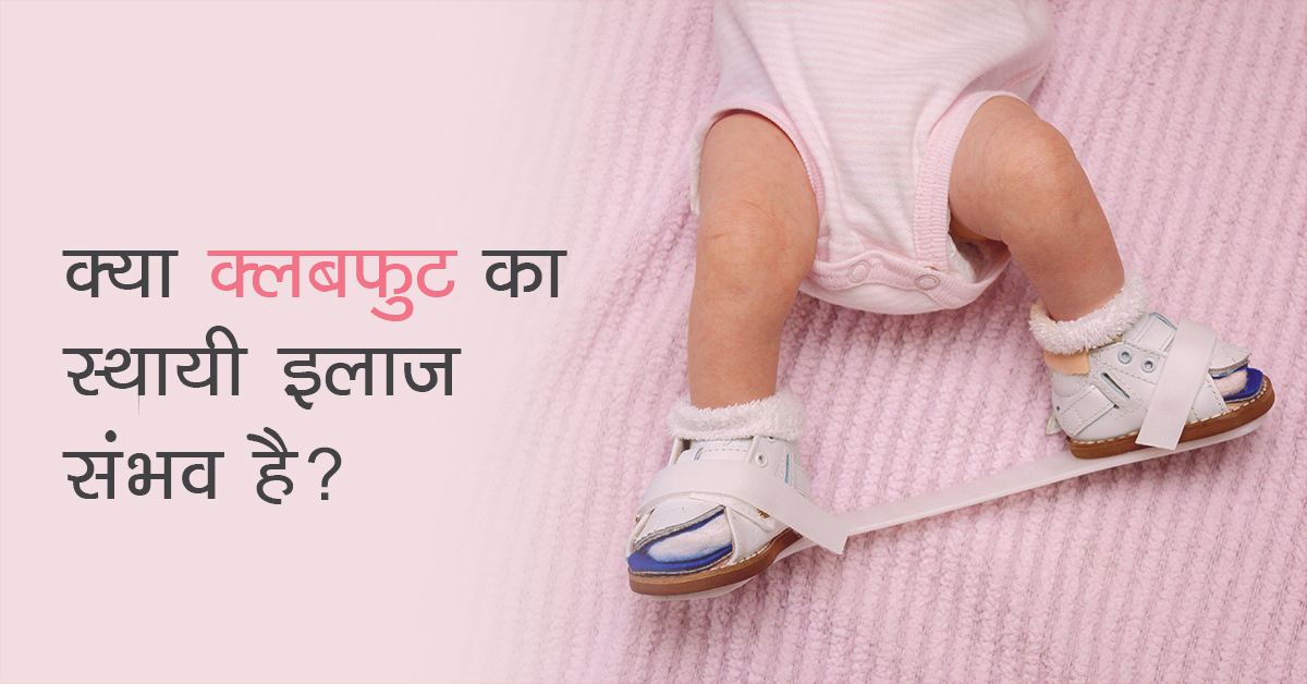 Clubfoot in Hindi, Clubfoot meaning in Hindi, Clubfoot treatment in Hindi