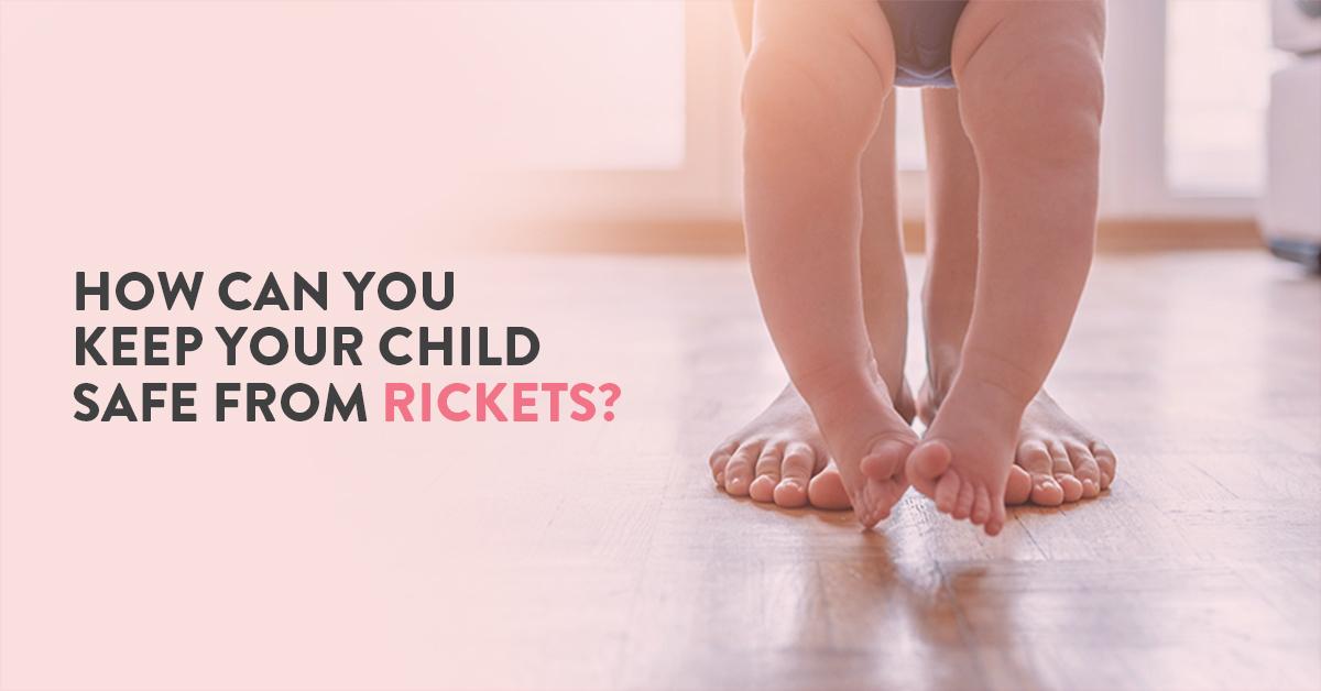 Rickets, what is rickets, Rickets in children, Vitamin D deficiency