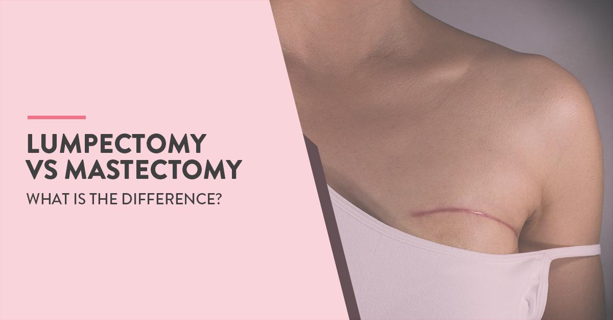 Breast Cancer Treatment, Lumpectomy Vs Mastectomy, Lumpectomy and Mastectomy, lumpectomy or mastectomy, lumpectomy or mastectomy how to decide, Lumpectomy Vs Mastectomy for breast cancer, lumpectomy surgery, Care after lumpectomy, Mastectomy surgery, Post Mastectomy care