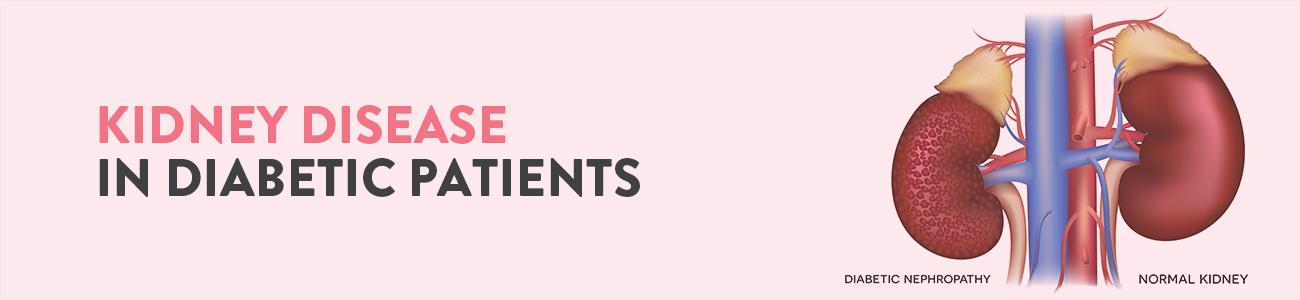 diabetic Kidney Disease, diabetes and kidney disease, diabetic nephropathy, diabetic Kidney Disease symptoms, diabetes and kidney disease stages, Can kidney disease cause diabetes, how does diabetes cause kidney disease, diabetes and kidney disease treatment, Diabetes and Kidney disease diet, Foods to avoid with Kidney disease and Diabetes Kidney diasease, complications of Diabetes, how to reverse kidney damage from diabetes, how long does it take for diabetes to cause kidney damage, diabetic Kidney Disease diagnosis